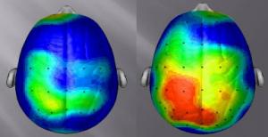 Egzersizden Sonra Beyin